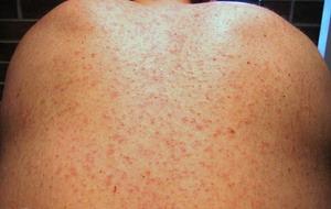 measles04