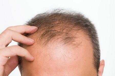 بهداشت و سلامت عمومی  , پاسخ سوالات متداول در مورد ریزش مو
