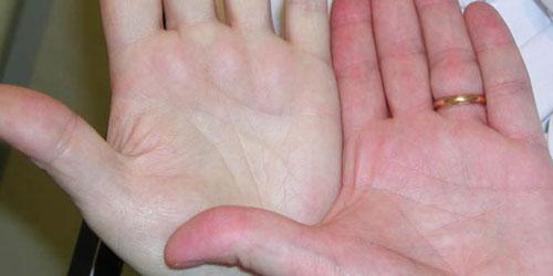 علایم کم خونی چیست ؟