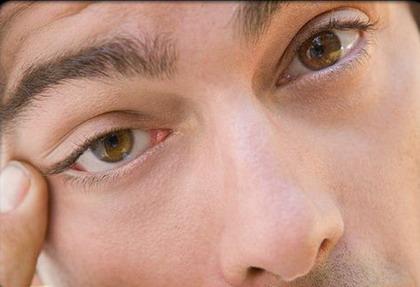 بیماری ها پزشکی و سلامت  , خشکی چشم : علایم، درمان