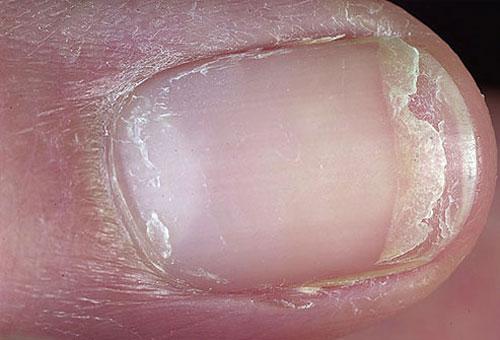 بیماری با ناخن چه میکند؟