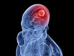 عوارض تومور مغزی, علائم تومور مغزی, درمان تومور مغزی, تومور مغزی, سردردهای شدید, اختلالات دید, سرطان, مشکلات بینایی, غده هیپوفیز, حملات صرع