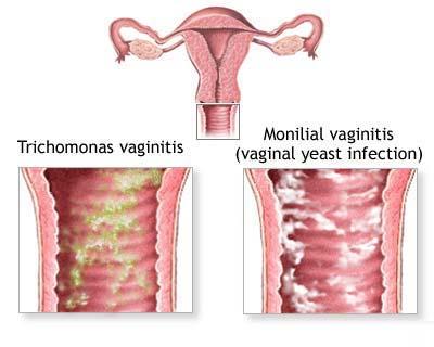 عفونت قارچی دوران بارداری