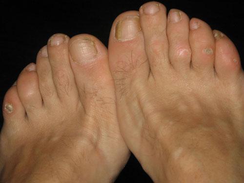 درمان میخچه پا