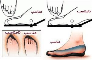 پیشگیری از میخچه پا