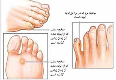 ضایعه پوستی, علل ایجاد میخچه