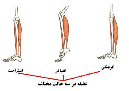 گرفتگی عضلات - گرفتگی ماهیچه