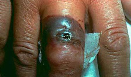 علایم، پیشگیری و درمان سیاه زخم