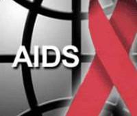 ایدز, بیماری ایدز, علائم بیماری ایدز, نشانه های بیماری ایدز, آزمایش ایدز, ویروس HIV, پیشگیری از بیماری ایدز