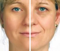 پیری پوست, پیر شدن پوست صورت, جلوگیری از پیر شدن پوست, جلوگیری از پیر شدن پوست صورت, پیری زودرس پوست