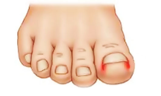 فرورفتگی ناخن پا در گوشت