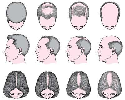 بهداشت و سلامت عمومی  , تفاوت ریزش مو در زنان و مردان