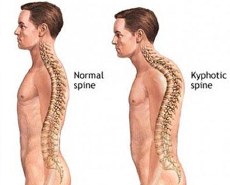 قوز پشت, حرکت های ورزشی برای درمان قوز پشت, درمان قوز پشت, ورزش برای درمان قوز پشت, قوز کردن