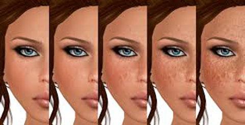 درمان کک و مک, تشکیل کک مک, افزایش کک مک, پیشگیری از کک مک, جلوگیری از ایجاد کک مک, روشن تر شدن رنگ کک مک