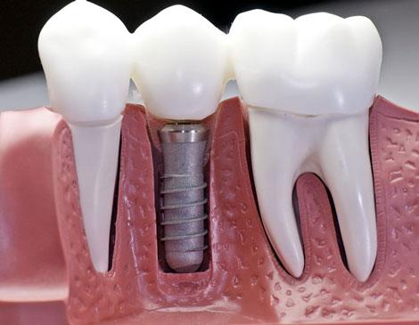 نظافت و مراقبت از دندان مصنوعی