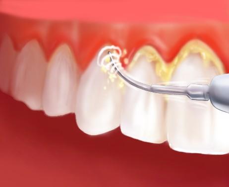 جرمگیری دندان - لق شدن دندان - بروساژ