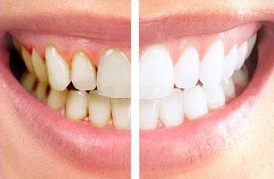 بوی بد دهان, پوسیدگی دندانها