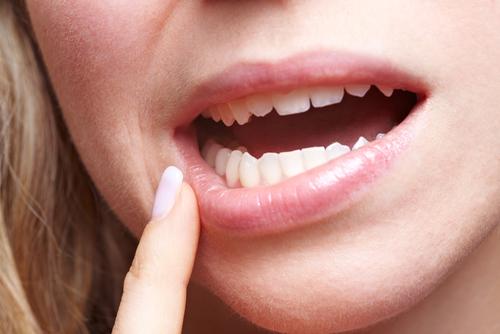 درمان سریع عفونت دندان
