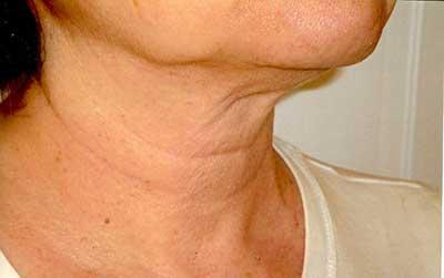 شل شدن و افتادگی پوست گردن , مراقبت از پوست