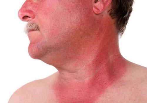 درمان های طبیعی برای آفتاب سوختگی