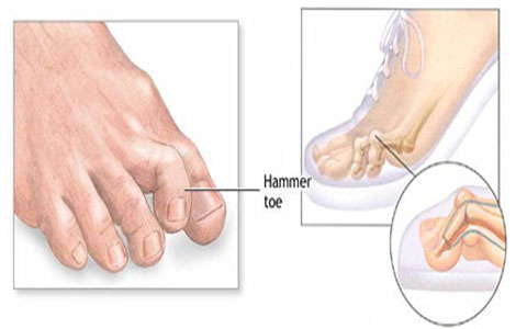 علایم - علل - علت - درمان - انگشت چکشی پا