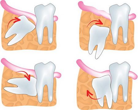 چه وقت دندان عقل مشکل ساز می شود ؟