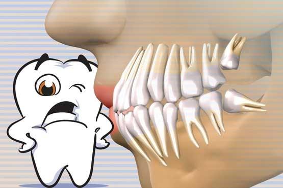 مشکلات دندان عقل - دندان عقل را باید کشید ؟