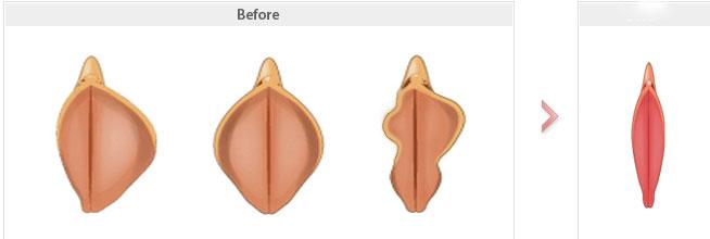 جراحی زیبایی واژن , جراحی آلت تناسلی زنان ,عمل لابیا پلاستی