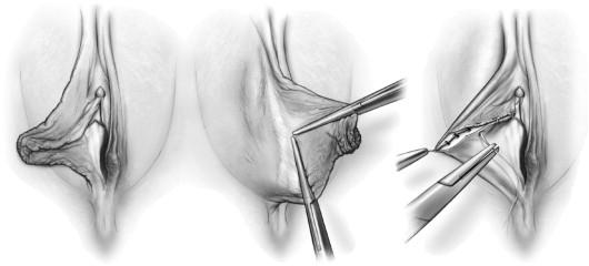 عمل زیبایی لبه های واژن