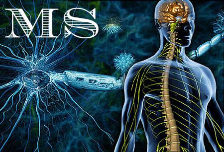 دلایل بروز بیماری ام اس - بیماری MS