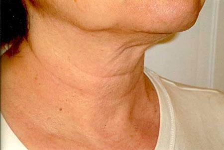 رفع چین و چروک گردن - پیشگیری از چین و چروک پوست گردن