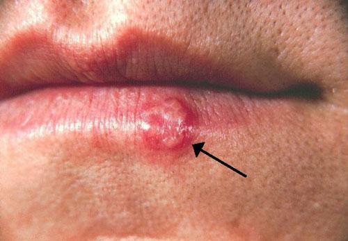 پیشگیری از تب خال - درمان تبخال با داروهای گیاهی