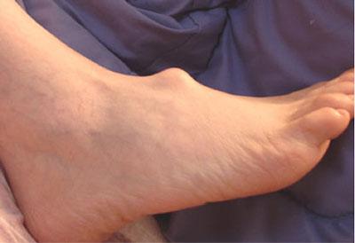 Ganglion-Cyst - علایم کیست های گانگلیون