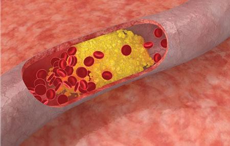 پیشگیری از چربی خون - کنترل چربی خون - درمان کلسترول بالا