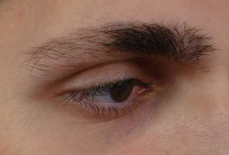 علل ریزش ابرو - درمان ریزش موی ابرو