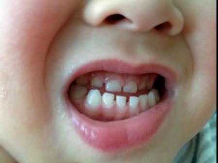 علل دندان قروچه و پیشگیری از آن
