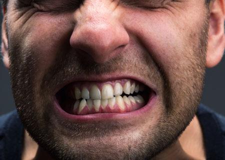 علل دندان قروچه و درمان آن