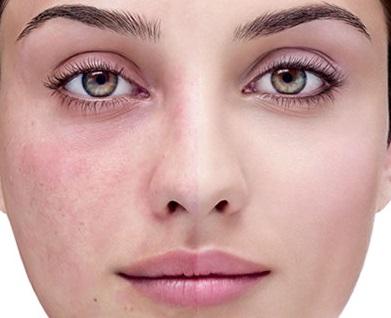 آرایش و زیبایی پوست  , علت بروز لک های پوستی