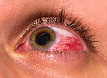 مشکلات چشم - بیماری های چشم
