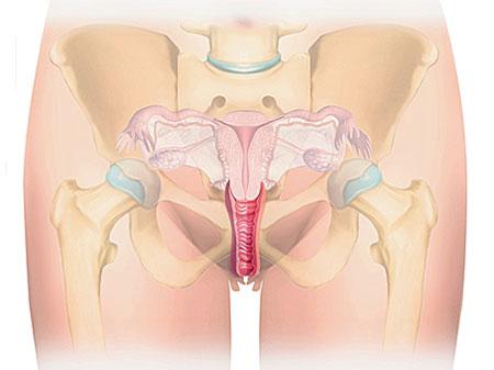 روش های تنگ کردن واژن و پرینورافی