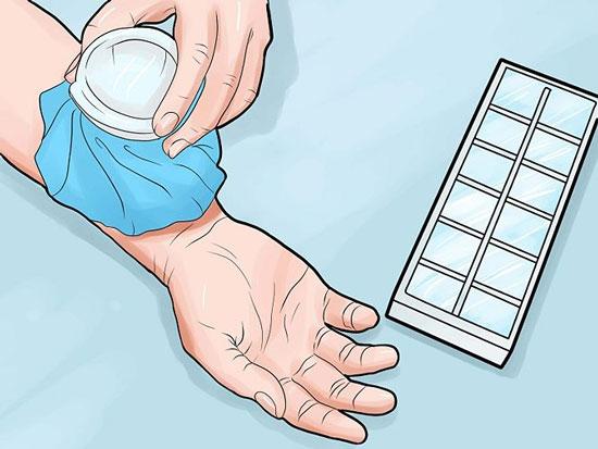 روشهای خانگی درمان پشه گزیدگی
