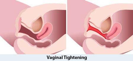 دانستنی های جنسی  , جوانسازی واژن و درمان گشادی واژن بدون جراحى + فیلم