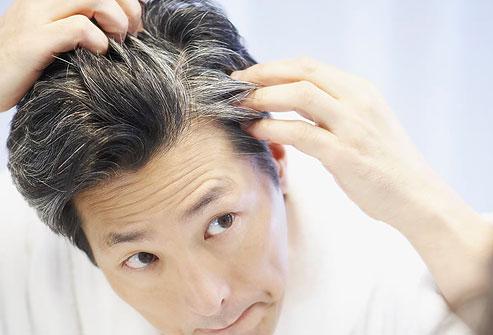 علت سفید شدن موها , روش درمان سفید شدن موها