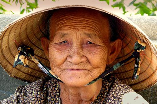 علت فرورفتگی دهان و فک با افزایش سن
