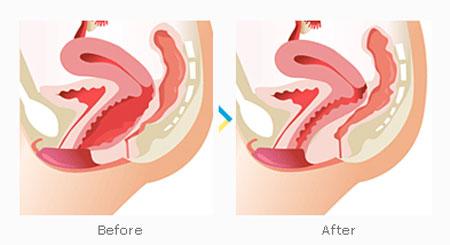 جوانسازی واژن, تنگ کردن واژن , گشادی واژن , شل شدن واژن