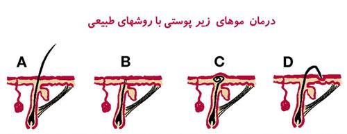 روشهای درمان موهای زیر پوستی و جلوگیری از آن