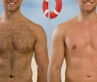از بین بردن موی زائد مردان