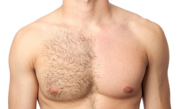 ازبین بردن دائمی موهای زائد - الکترولیز - لیزر درمانی
