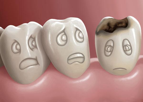 بهداشت و سلامت عمومی پزشکی و سلامت  , مهمترین علل خرابی دندان ها