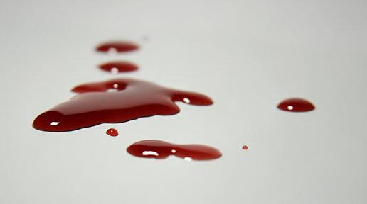 خروج خون از بدن و علت نجس بودن آن